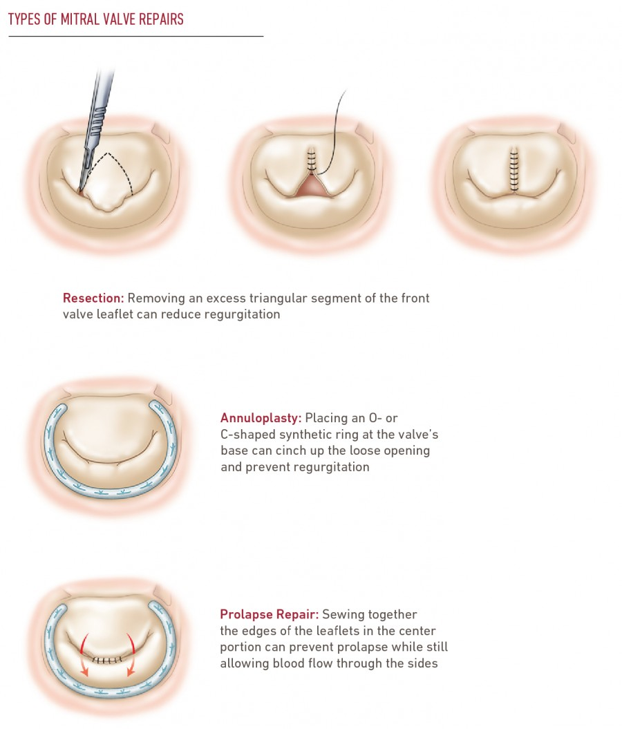 Mitral Valve Repair & Replacement