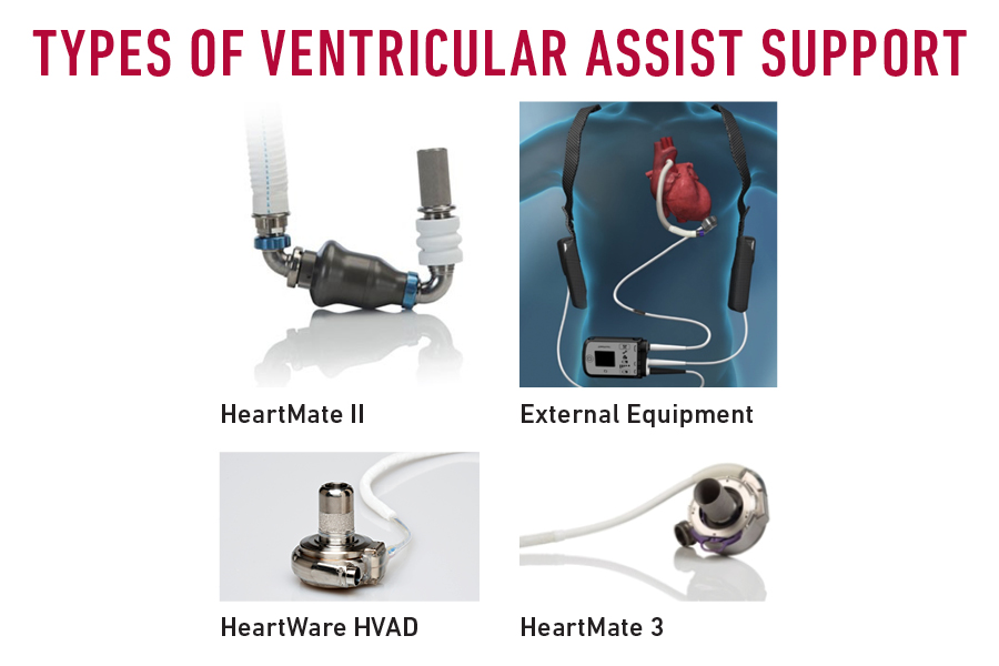 Types of ventricular assist devices (VADs)