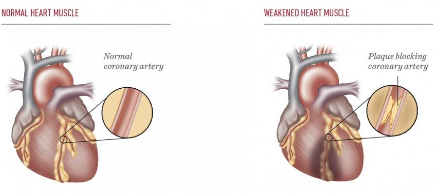 Diagram of normal heart muscle versus weakened heart muscle with plaque blocking the artery