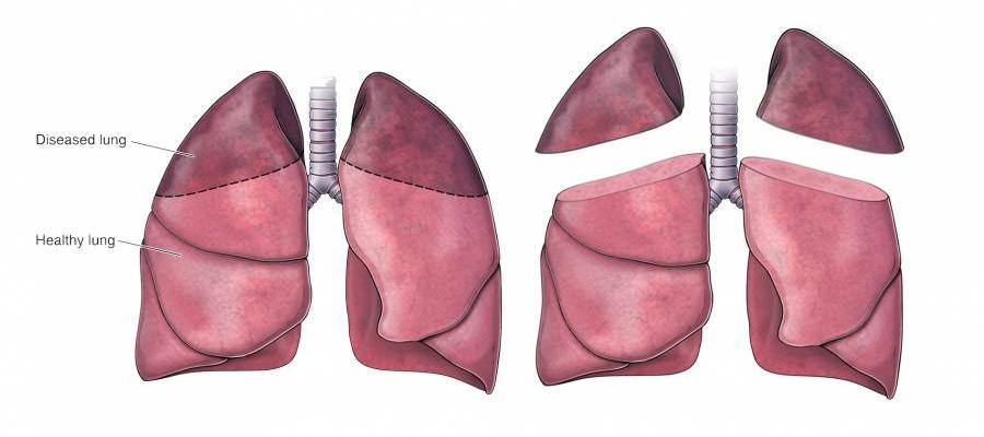 Graphic of diseased lung versus healthy lung to show which parts are removed during a lung volume reduction surgery