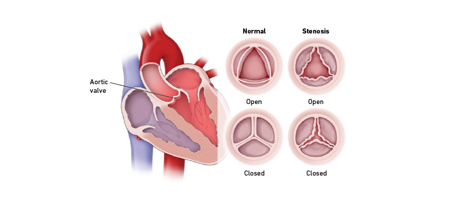Aortic valve stenosis graphic