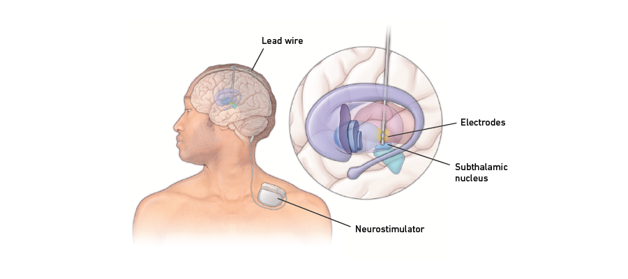 Deep brain stimulation graphic