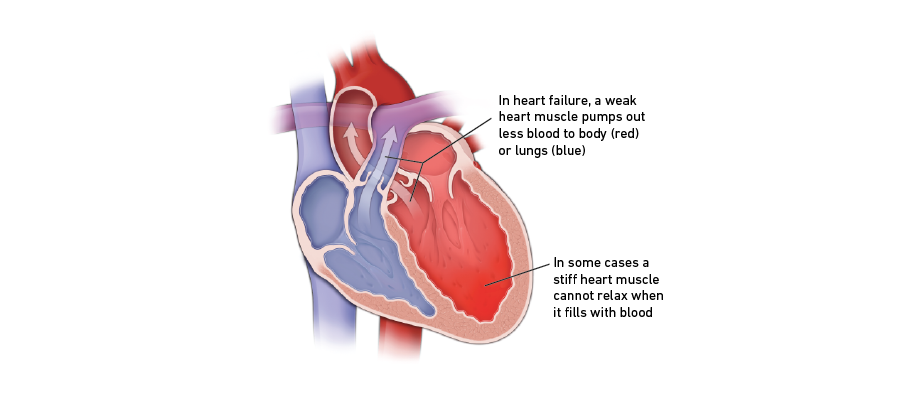 Heart failure graphic