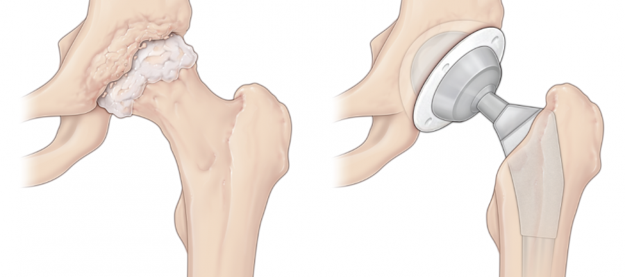 Hip replacement before and after graphic