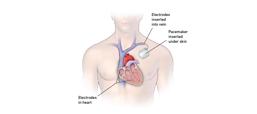 Inserted pacemaker graphic