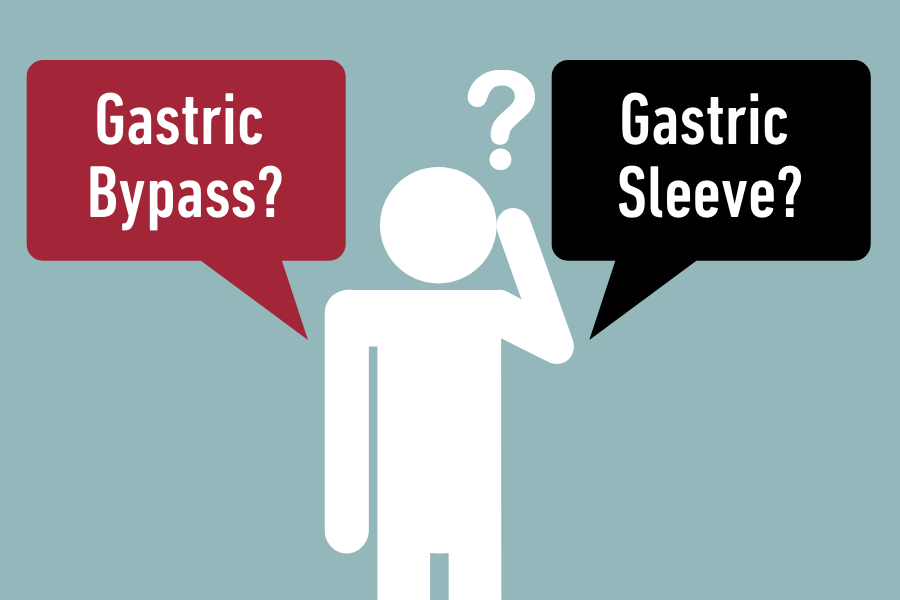 Gastric bypass vs gastric sleeve