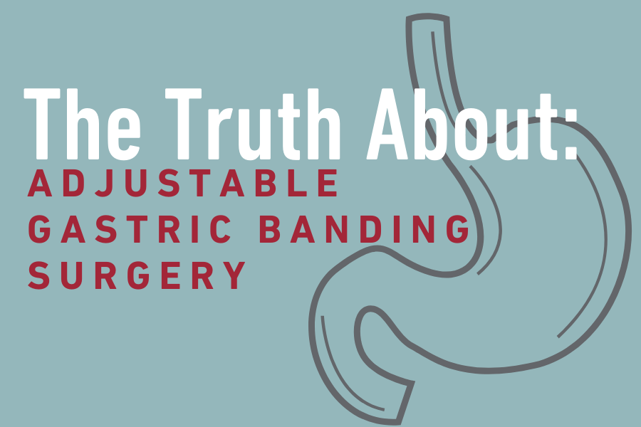 Adjustable Gastric Banding Surgery graphic