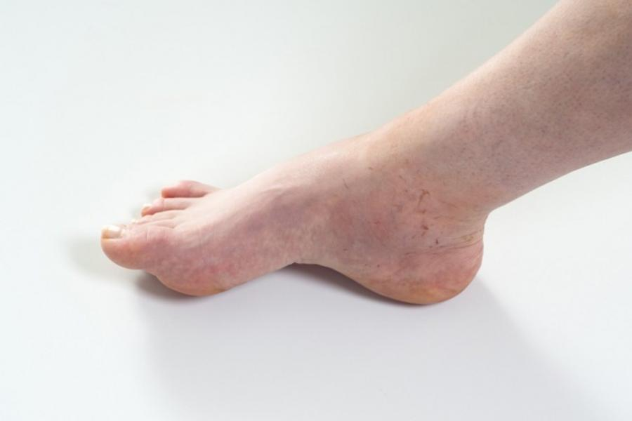 Closeup of persons foot