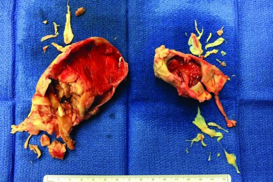Extensive chronic clot removed from both of Kevin's lungs