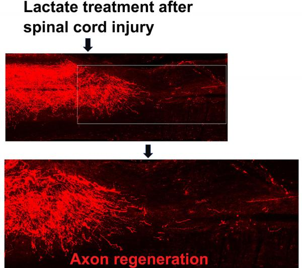 Lactate treatment after spinal cord injury