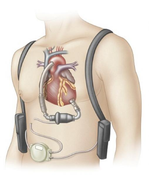 Ventricular Assist Device graphic