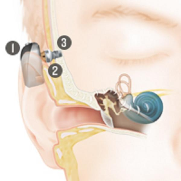 Bone anchored hearing system