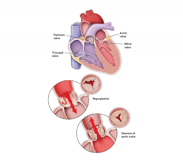 Heart valve conditions graphic