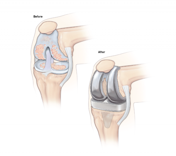 Knee replacement before and after graphic
