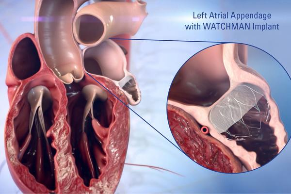 WATCHMAN device being implanted in the heart