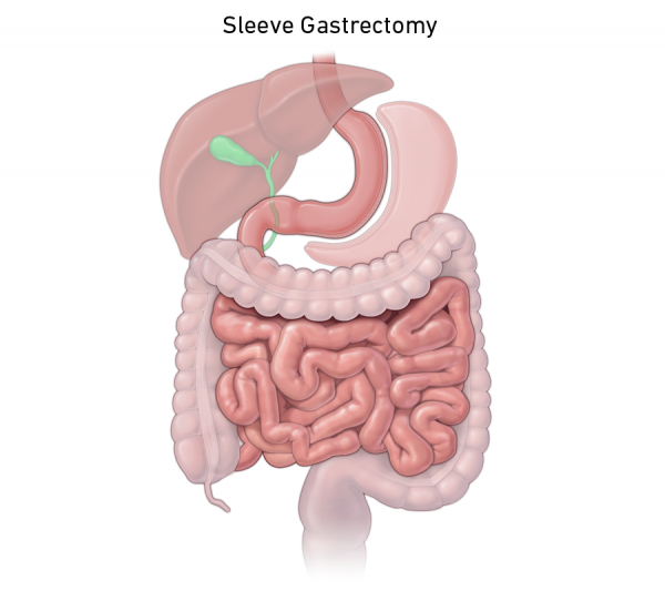Gastric sleeve surgery illustration
